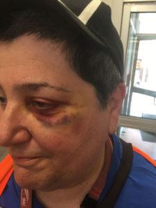 ENOUGH IS ENOUGH: Bus driver assaults must stop